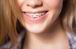 Close up portrait of smiling teen girl showing dental braces. Dunwoody, GA.
