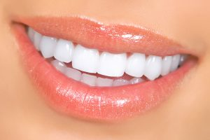 Woman Teeth Porcelain Veneers Dunwoody GA
