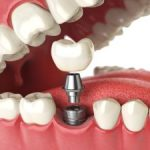 Dental Implants Dunwoody GA