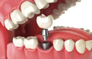 Dental Implants Dunwoody GA